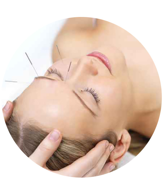 woman receives healing acupuncture treatment at health traditions chicago