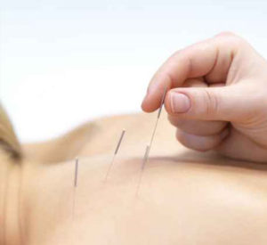 acupuncture healing board certified chicago